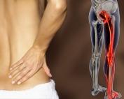 Preventing Sciatica